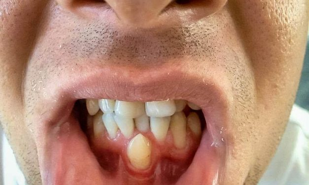 Hyperdontie (dents surnuméraires)