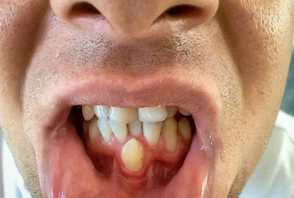 Hyperdontia (supernumerary teeth)