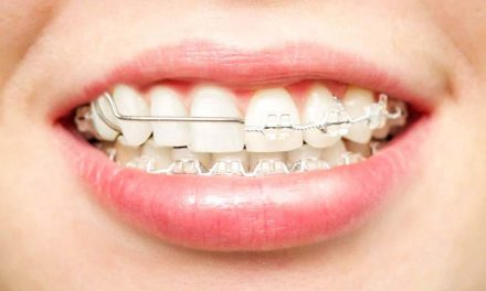 Which is better retainers or braces?