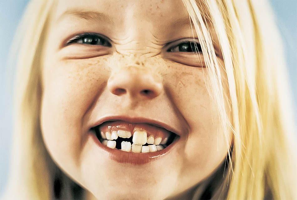 Est-ce que les enfants peuvent souffrir de grincement des dents?