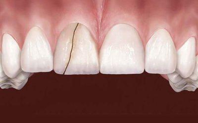 10 façons de craquer ou de briser les dents
