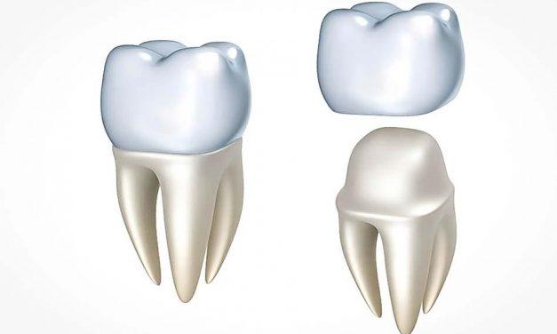 Faut-il poser une couronne sur une dent qui a eu un traitement de canal?