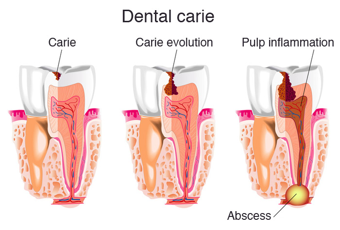 Evolution of dental caries