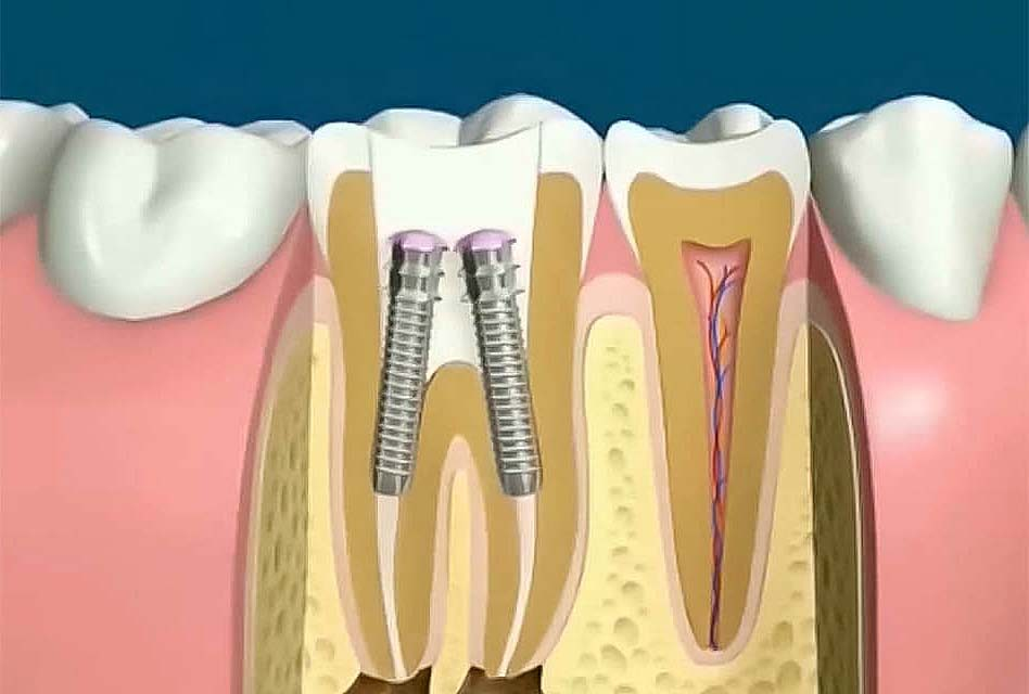 Dental post