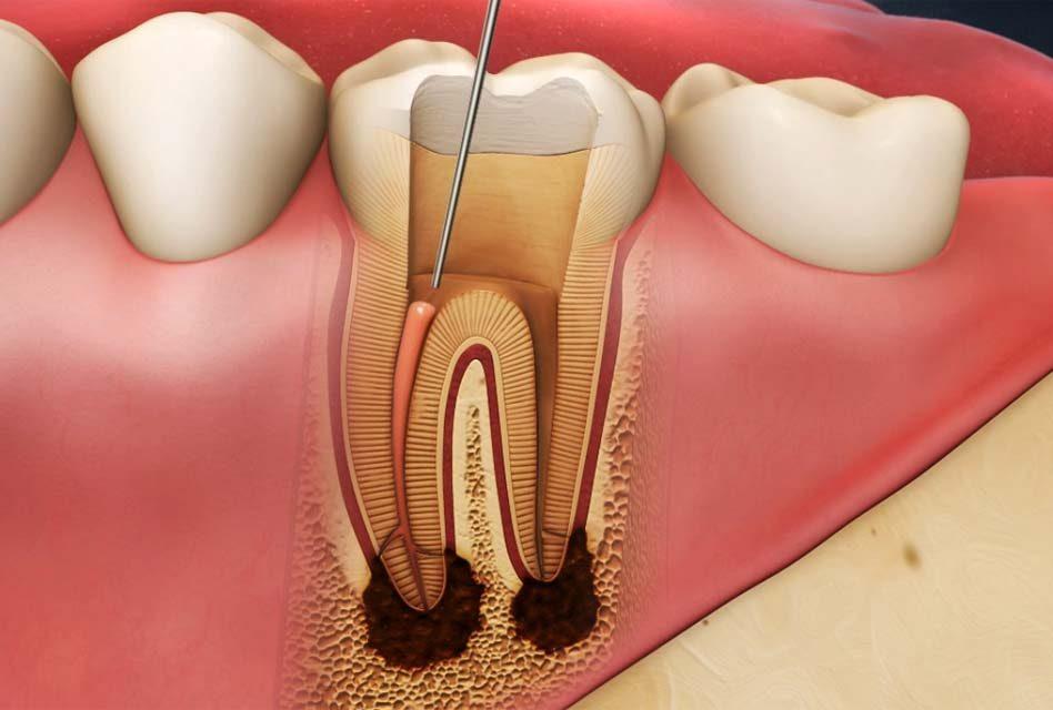 Retraitement endodontique
