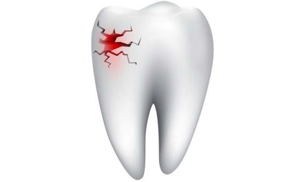 Can an abscess cause a tooth to break apart?