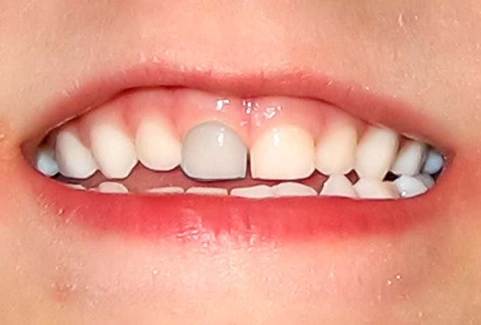 Grey teeth and tooth discolouration