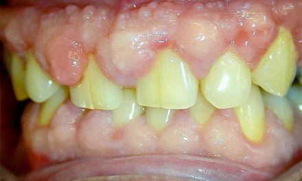 Hyperplasie gingivale