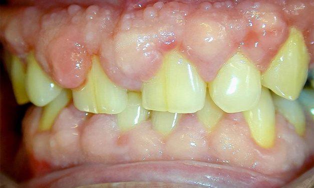 Hyperplasie gingivale