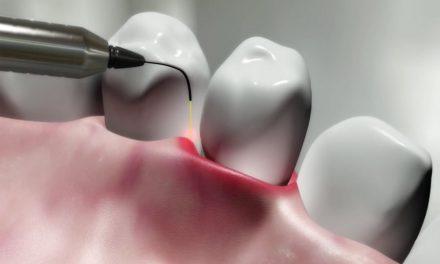 Traitements des maladies des gencives (parodontales)