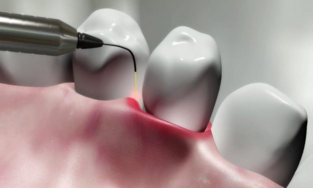 Periodontal (gum) disease treatments