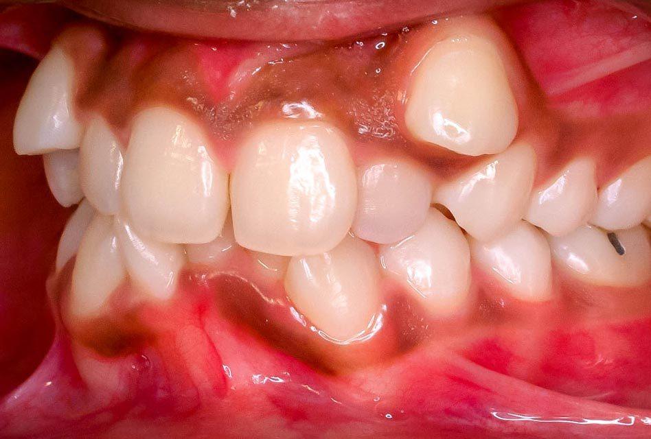 Malocclusion (chevauchement des dents)