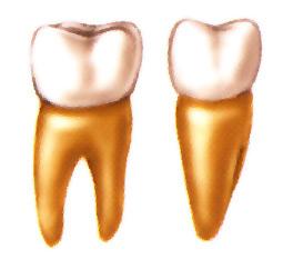 Anatomie d'une molaire