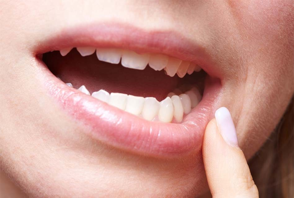 How long does the numbing last after a dentist appointment?