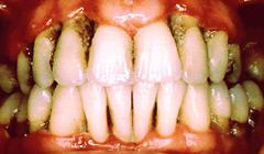 maladies des gencives maladies parodontales studio dentaire. Black Bedroom Furniture Sets. Home Design Ideas