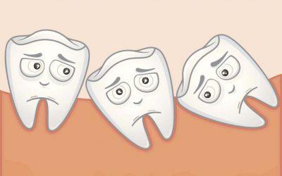 Pourquoi est-ce que les dents de sagesse sont appelées «dents de sagesse»?