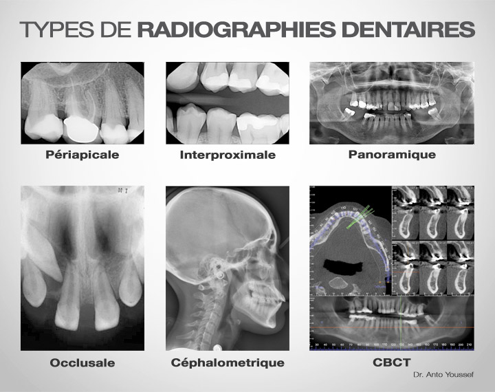 Types de radiographies dentaires