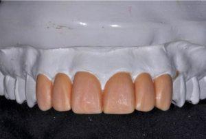 Wax-up teeth