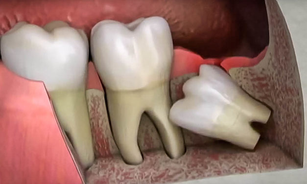 5 things you didn't know about wisdom teeth