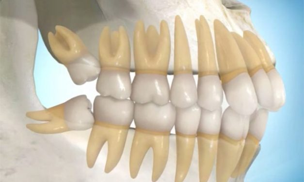 Can wisdom teeth move other teeth?