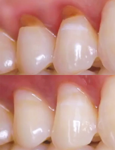 White fillings to correct abrasion