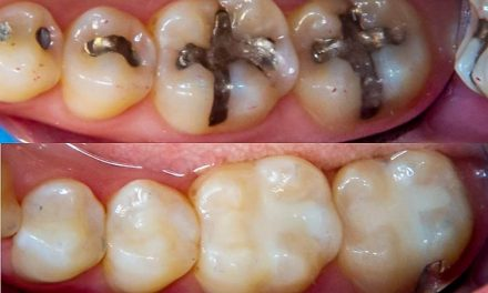 What lasts longer, grey or white fillings?