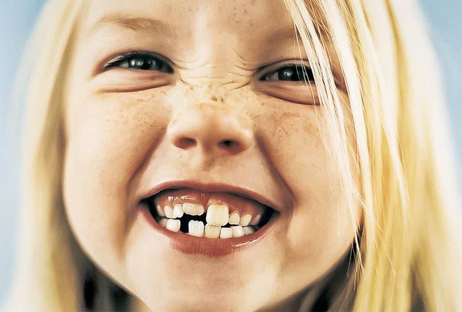 Can teeth grinding affect children?