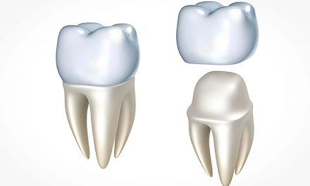 Is it necessary to place a dental crown on a tooth that had a root canal?
