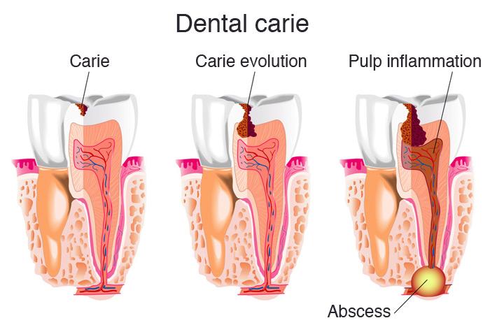 Evolution of dental caries