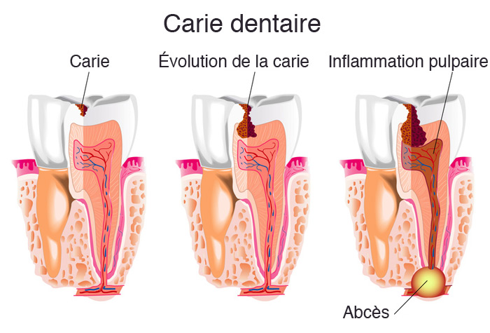 Abcès dentaire | Studio Dentaire