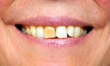 Tooth Discolouration