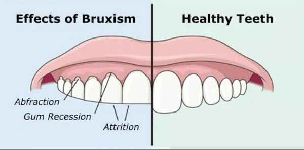 Effects of bruxism