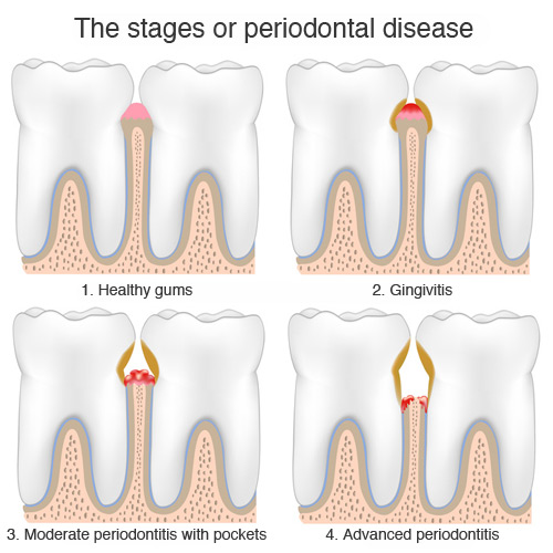 Stages of periodontitis
