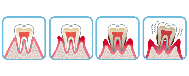 Evolution gum disease
