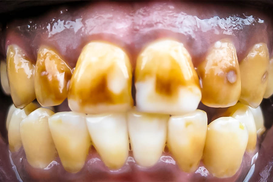 Fluorosis (dental)