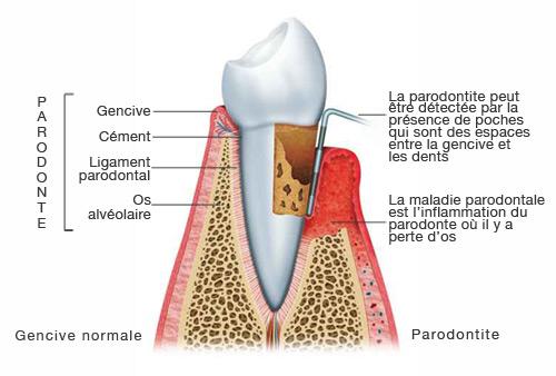 Parodontite Studio Dentaire