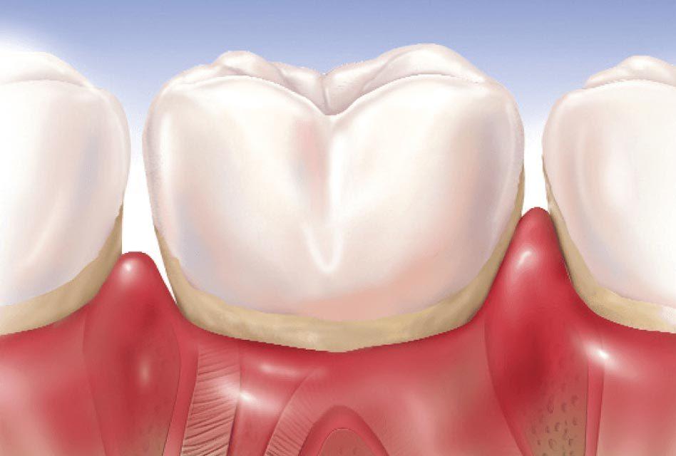 Maladies des gencives (maladies parodontales)