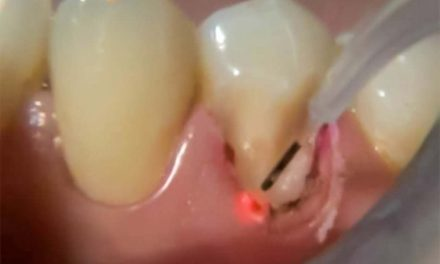 Gingivoplasty