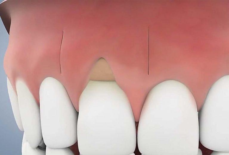 gum-graft   Studio Dentaire