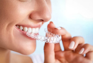 Orthodontie invisible: Invisalign