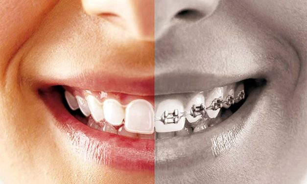 Orthodontie invisible
