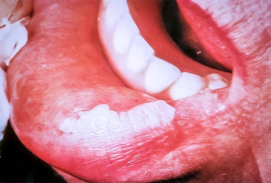 Leucoplasie