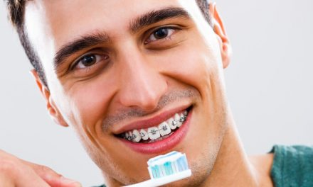 Hygiene and orthodontics