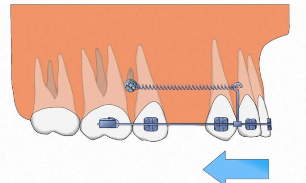 Mini-implants ou mini-vis pour l'orthodontie
