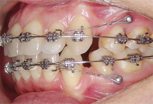 Mini-screws in mouth