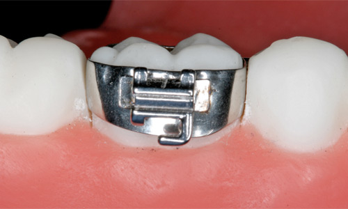 Orthodontic band
