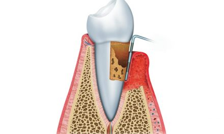Periodontal pocket