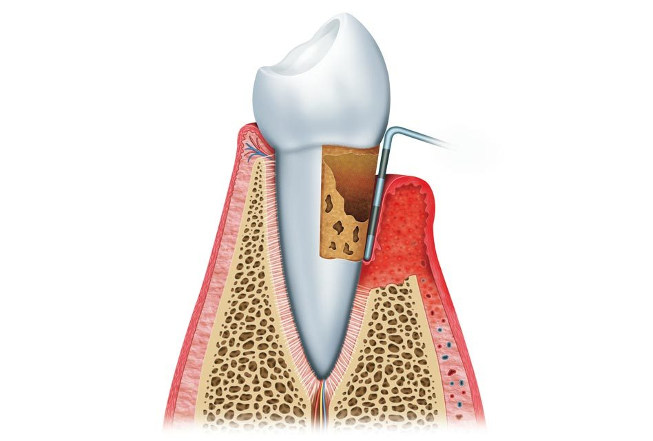 Gingival pocket