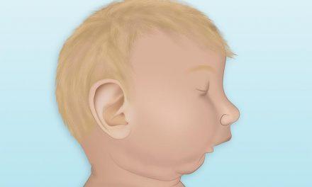 Retrognathia (retrognatism)