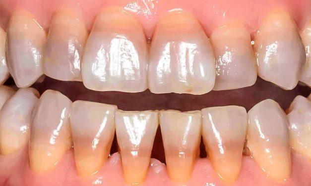 Est-ce que les antibiotiques peuvent décolorer les dents?